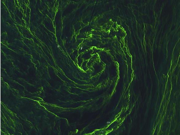 tempesta alghe